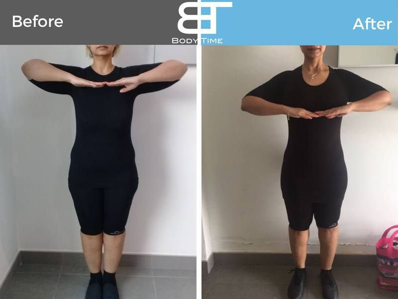 before-and-after-bodytimeems